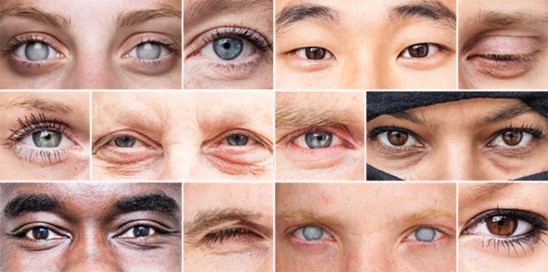 eyegrid